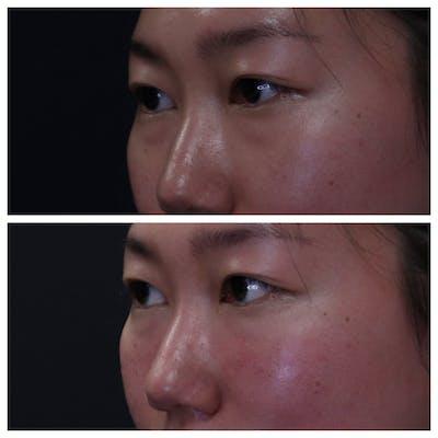 Eye Gallery - Patient 54039861 - Image 1