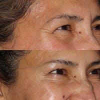 Botox Gallery - Patient 54039907 - Image 1