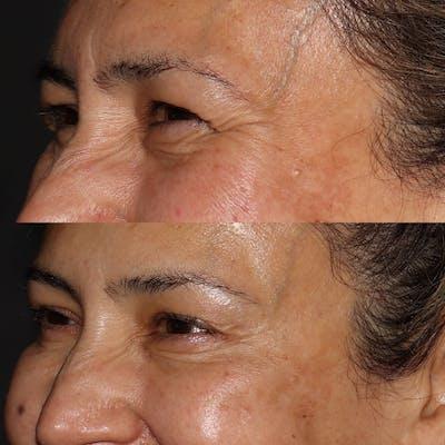 Botox Gallery - Patient 54039907 - Image 2