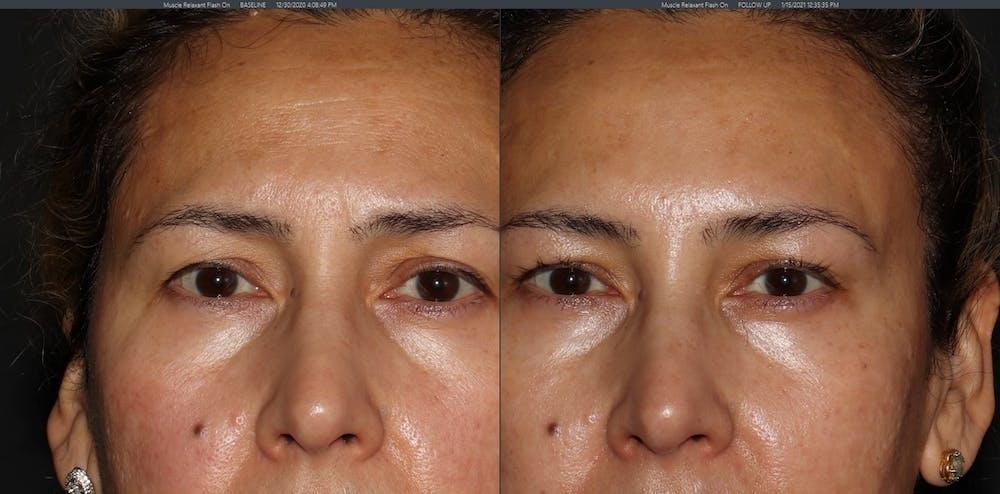 Botox Gallery - Patient 54039907 - Image 3