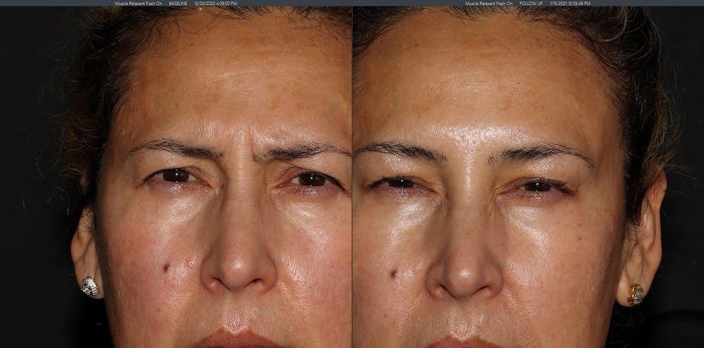 Botox Gallery - Patient 54039907 - Image 4
