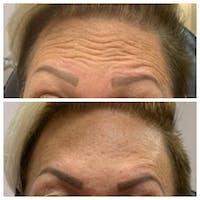 Botox Gallery - Patient 54039908 - Image 1