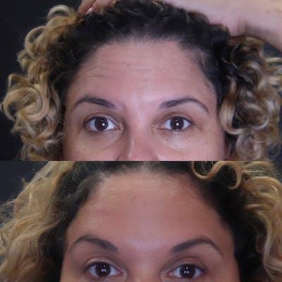 Botox Gallery - Patient 54039909 - Image 1