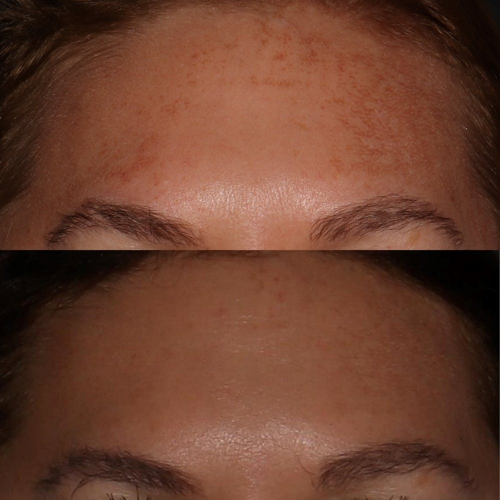 Chemical Peel Gallery - Patient 58143763 - Image 1