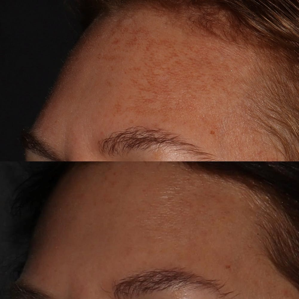 Chemical Peel Gallery - Patient 58143763 - Image 2