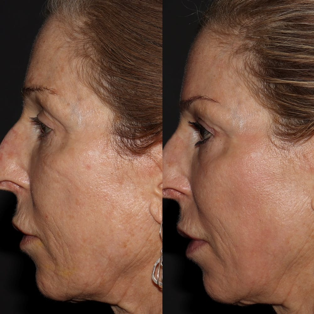 Chemical Peel Gallery - Patient 58143764 - Image 1