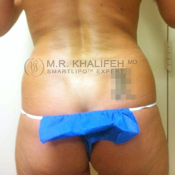 Abdominal Liposuction Gallery - Patient 3717613 - Image 7