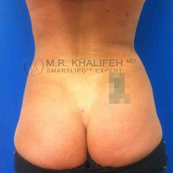Abdominal Liposuction Gallery - Patient 3717613 - Image 8
