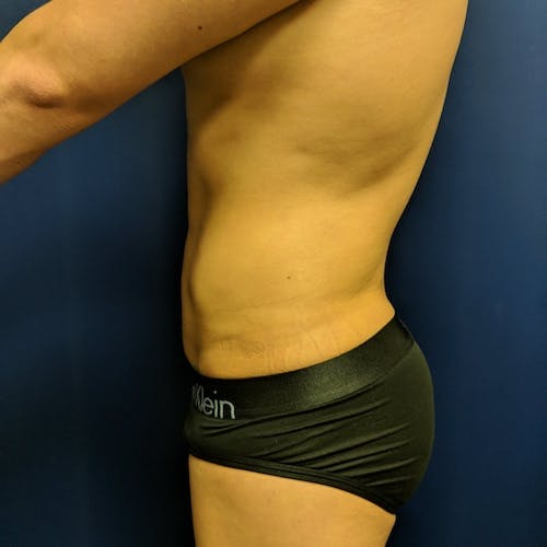 Abdominal Liposuction Gallery - Patient 3717614 - Image 6