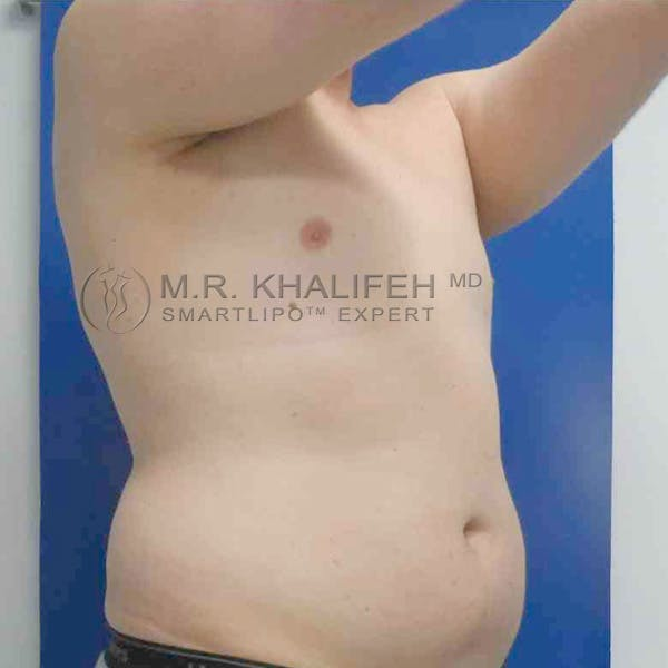 Abdominal Liposuction Gallery - Patient 3717634 - Image 1