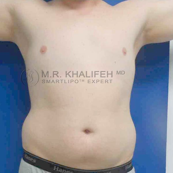 Abdominal Liposuction Gallery - Patient 3717634 - Image 3