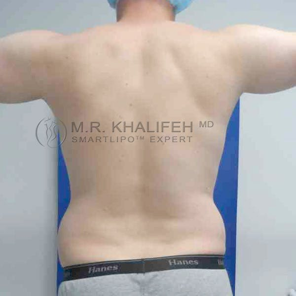 Abdominal Liposuction Gallery - Patient 3717634 - Image 7