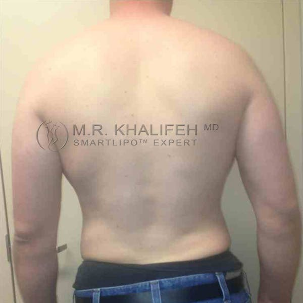 Abdominal Liposuction Gallery - Patient 3717634 - Image 8