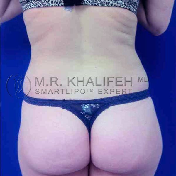 Abdominal Liposuction Gallery - Patient 3717635 - Image 6