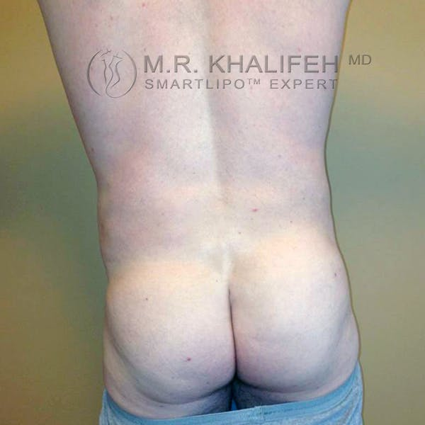 Abdominal Liposuction Gallery - Patient 3717637 - Image 2