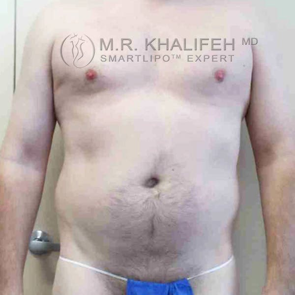 Abdominal Liposuction Gallery - Patient 3717637 - Image 3