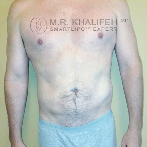 Abdominal Liposuction Gallery - Patient 3717637 - Image 4