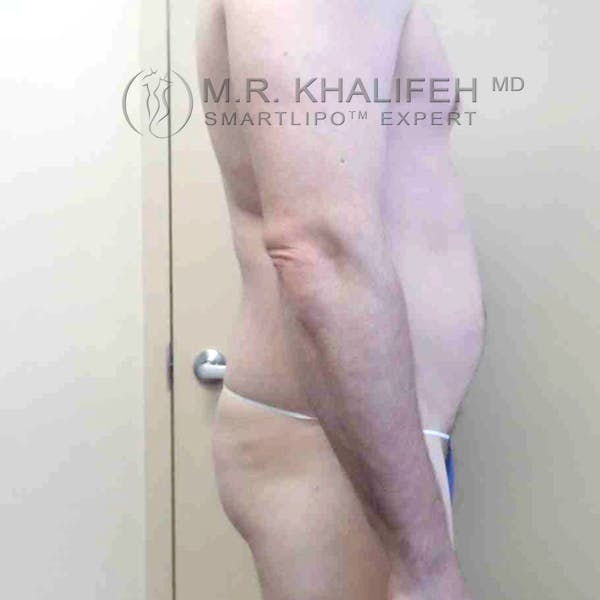 Abdominal Liposuction Gallery - Patient 3717637 - Image 5