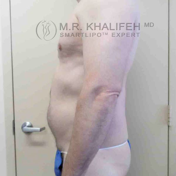 Abdominal Liposuction Gallery - Patient 3717637 - Image 7