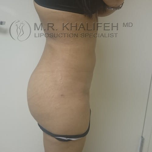 Abdominal Liposuction Gallery - Patient 3717638 - Image 6