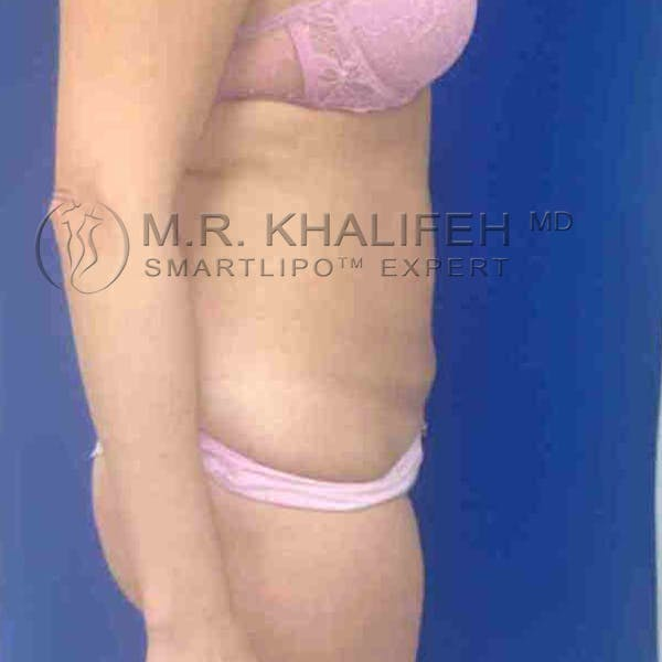 Abdominal Liposuction Gallery - Patient 3717639 - Image 4