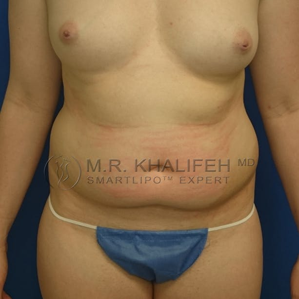 Abdominal Liposuction Gallery - Patient 3717640 - Image 1