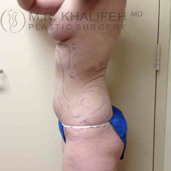 Abdominal Liposuction Gallery - Patient 3717641 - Image 1