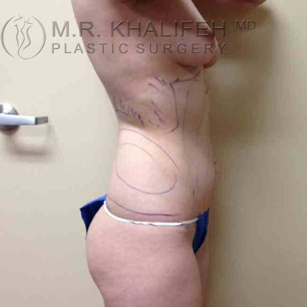 Abdominal Liposuction Gallery - Patient 3717641 - Image 3