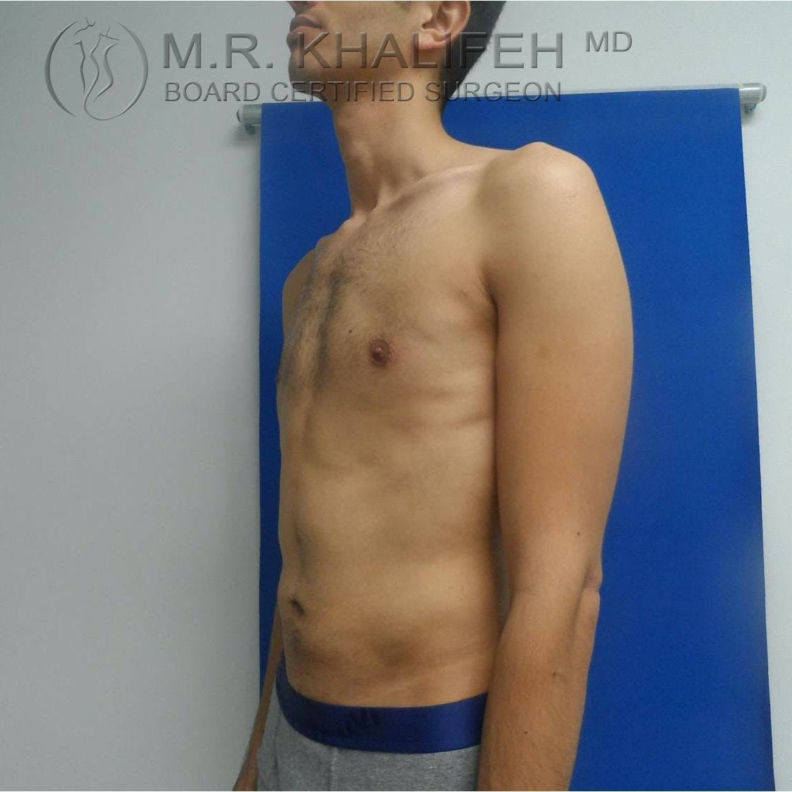 Abdominal Liposuction Gallery - Patient 3717644 - Image 6