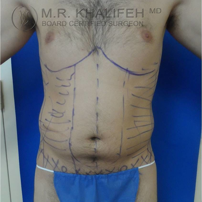 Abdominal Liposuction Gallery - Patient 3717644 - Image 9