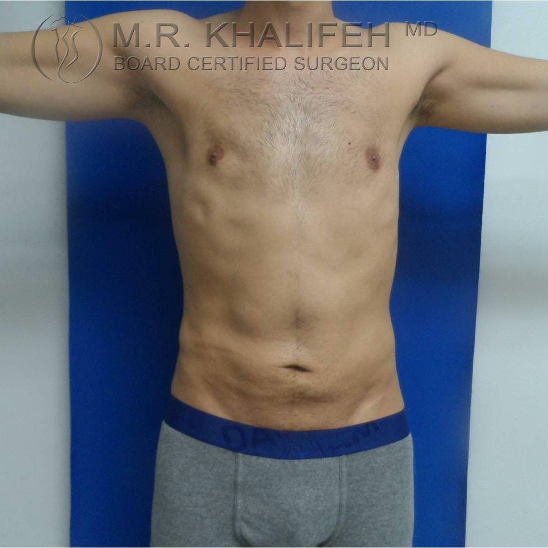 Abdominal Liposuction Gallery - Patient 3717644 - Image 10