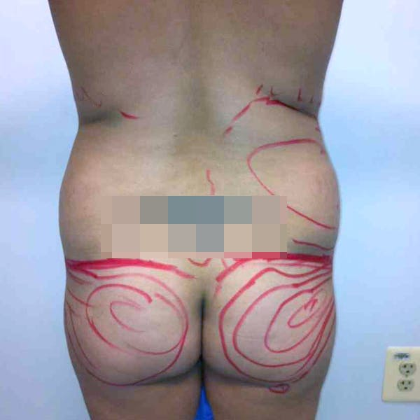 Abdominal Liposuction Gallery - Patient 3717646 - Image 1