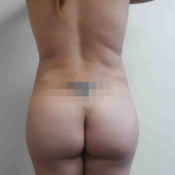 Abdominal Liposuction Gallery - Patient 3717646 - Image 2