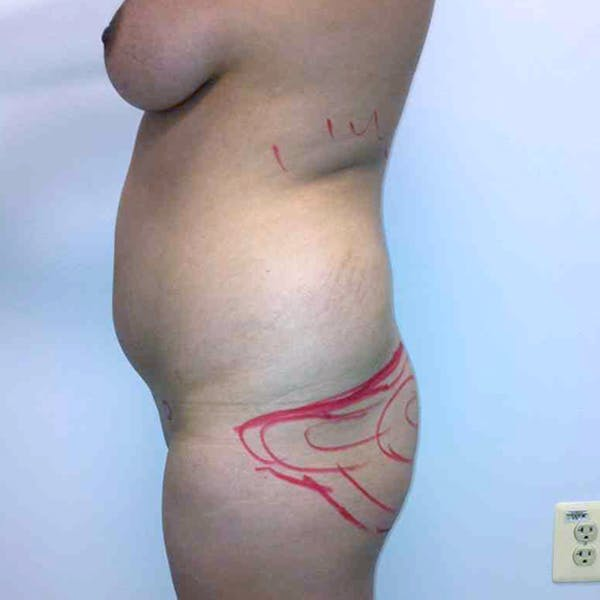 Abdominal Liposuction Gallery - Patient 3717646 - Image 3