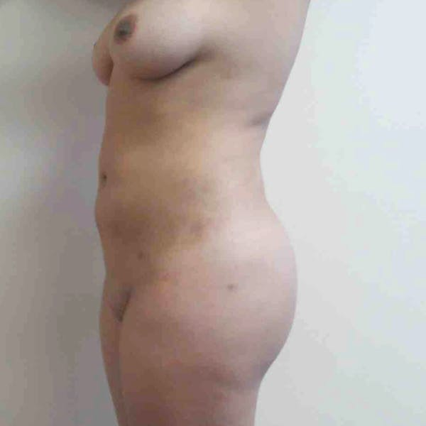 Abdominal Liposuction Gallery - Patient 3717646 - Image 4