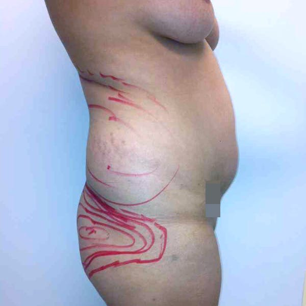 Abdominal Liposuction Gallery - Patient 3717646 - Image 5