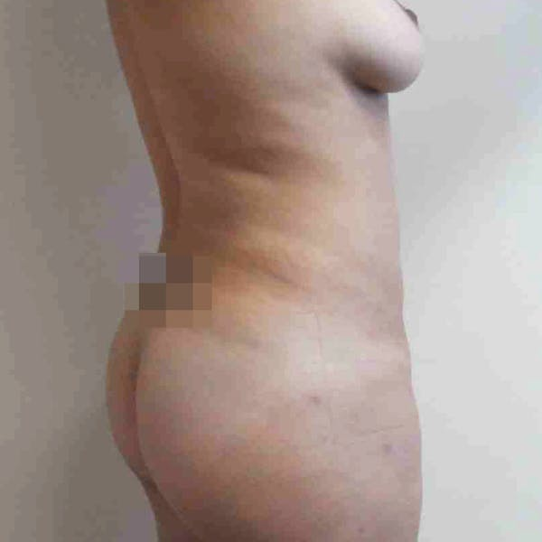 Abdominal Liposuction Gallery - Patient 3717646 - Image 6