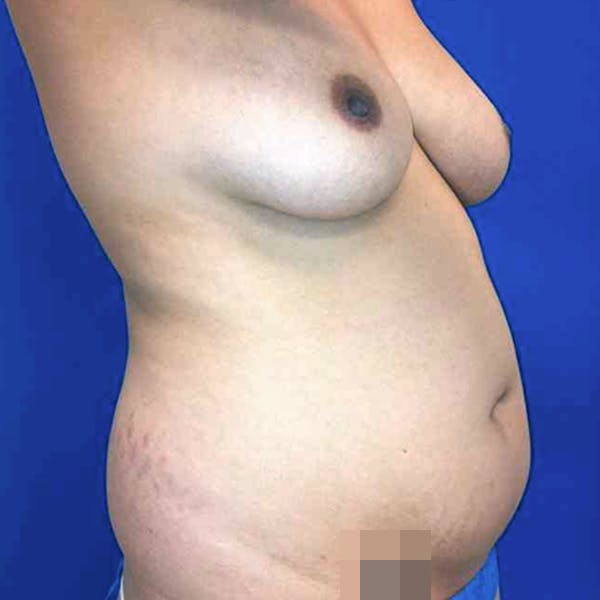 Abdominal Liposuction Gallery - Patient 3717646 - Image 9