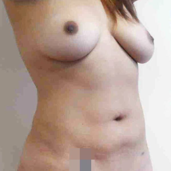 Abdominal Liposuction Gallery - Patient 3717646 - Image 10