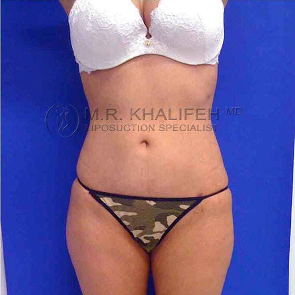 Abdominal Liposuction Gallery - Patient 3717650 - Image 2