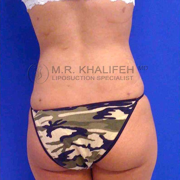 Abdominal Liposuction Gallery - Patient 3717650 - Image 6