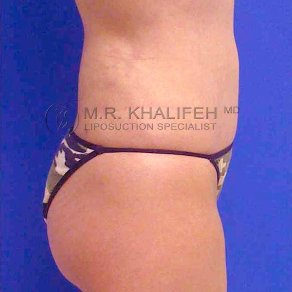 Abdominal Liposuction Gallery - Patient 3717650 - Image 8