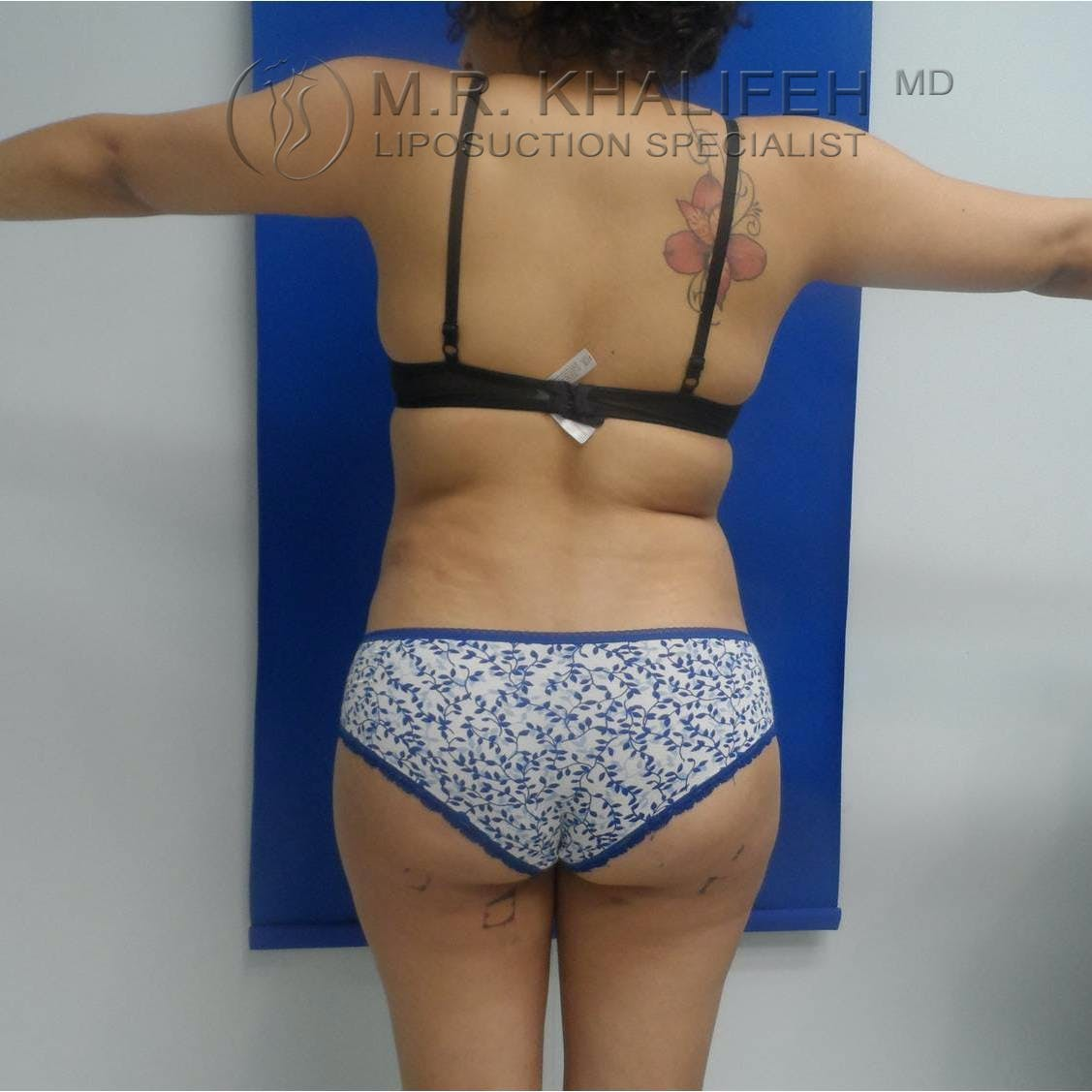 Abdominal Liposuction Gallery - Patient 3717671 - Image 4