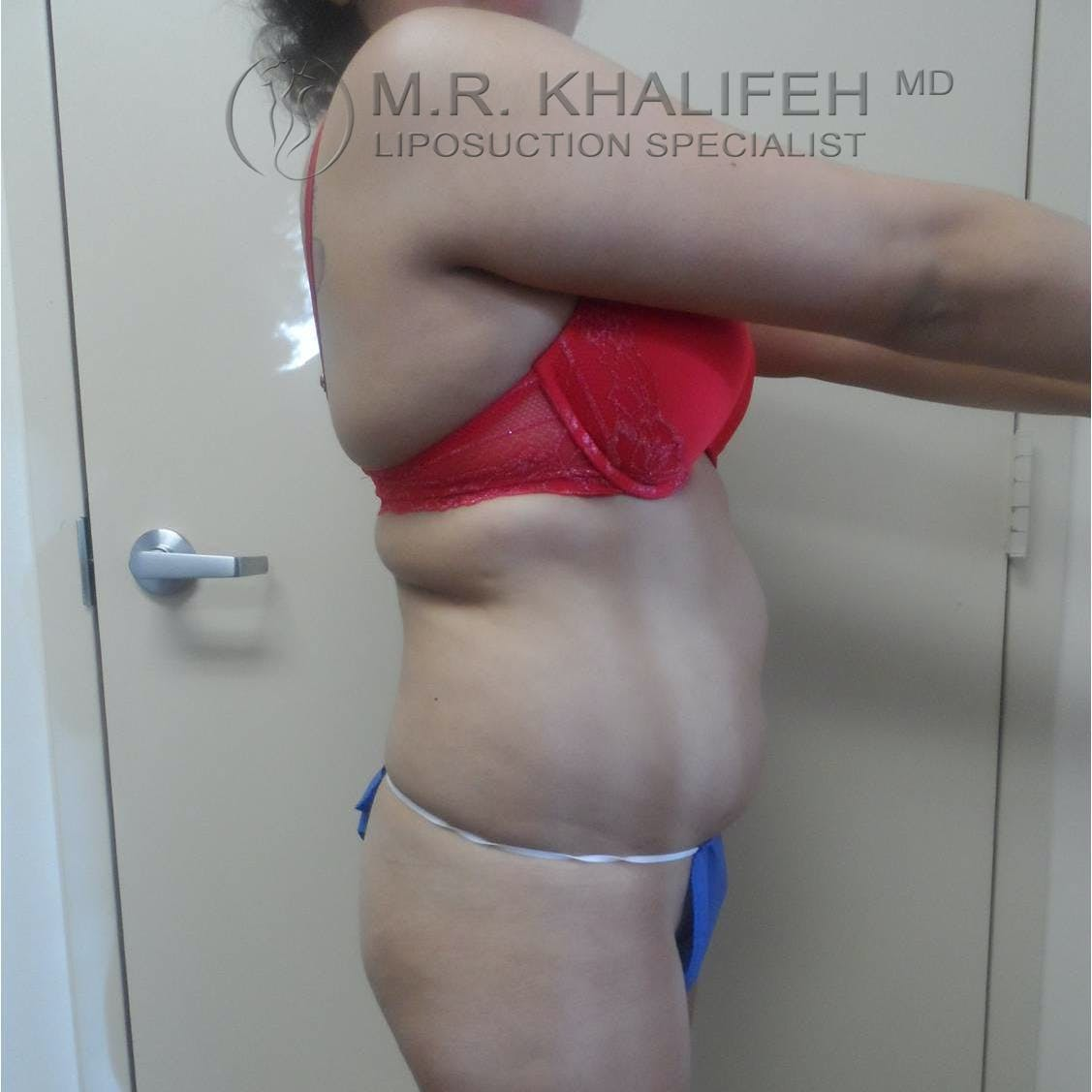 Abdominal Liposuction Gallery - Patient 3717671 - Image 5