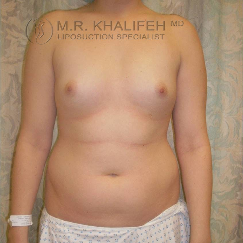 Abdominal Liposuction Gallery - Patient 3717804 - Image 3