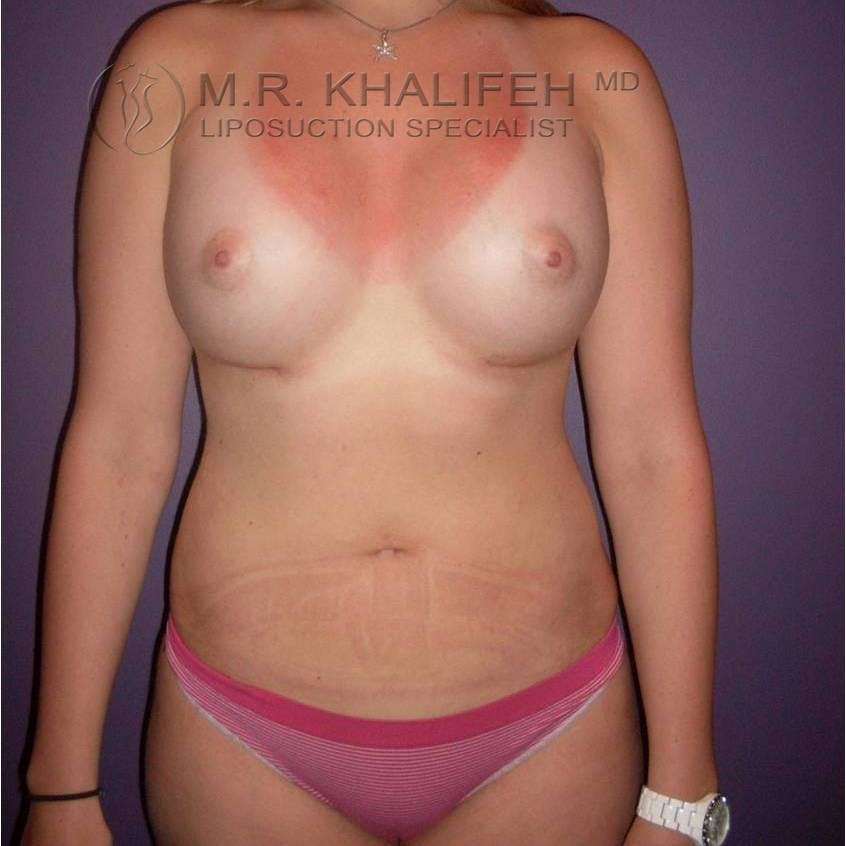 Abdominal Liposuction Gallery - Patient 3717804 - Image 4