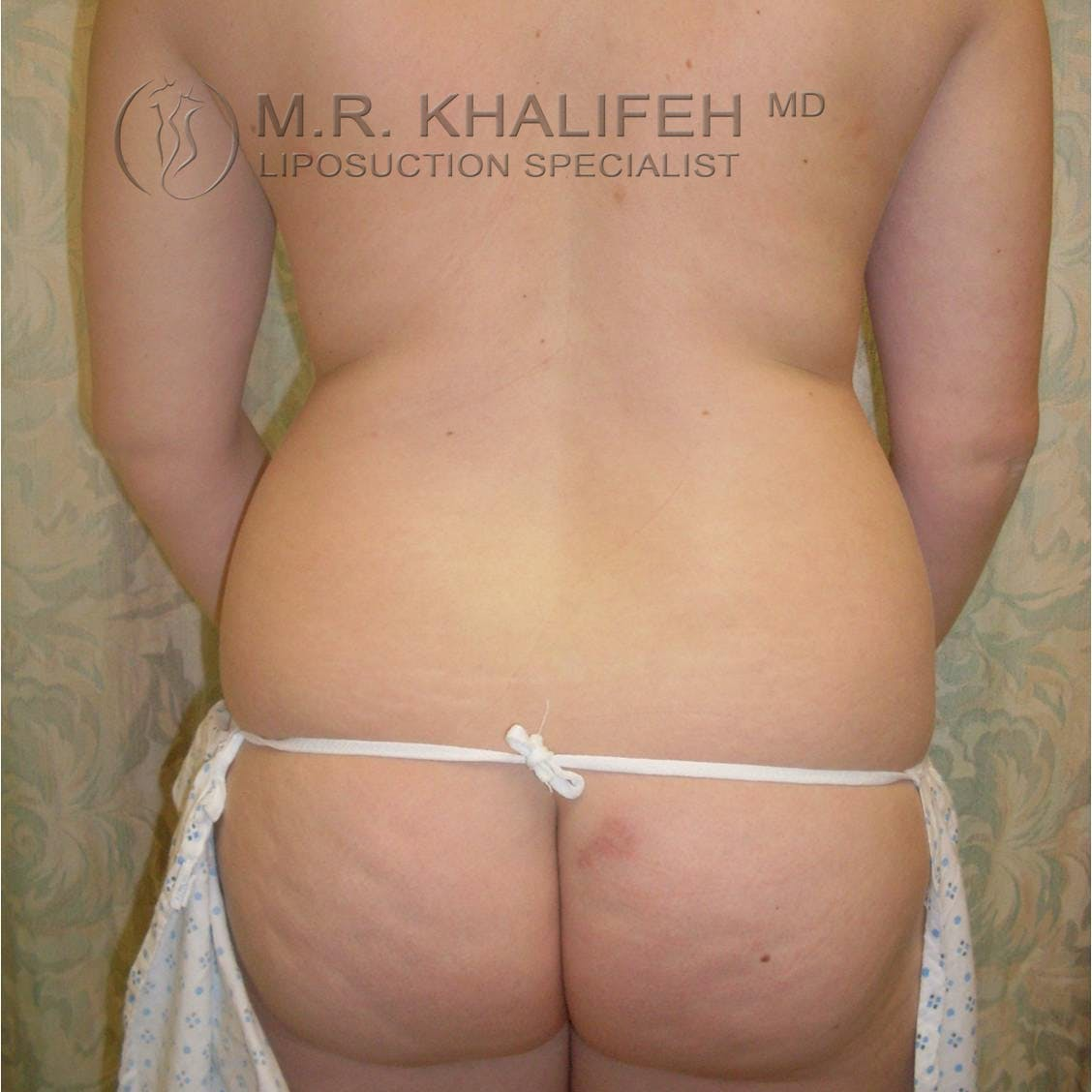 Abdominal Liposuction Gallery - Patient 3717804 - Image 7