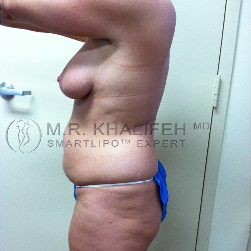 Abdominal Liposuction Gallery - Patient 3717843 - Image 1