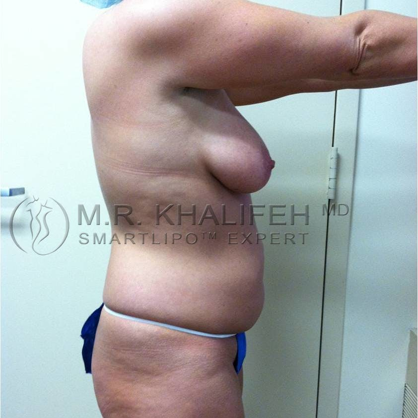 Abdominal Liposuction Gallery - Patient 3717843 - Image 3