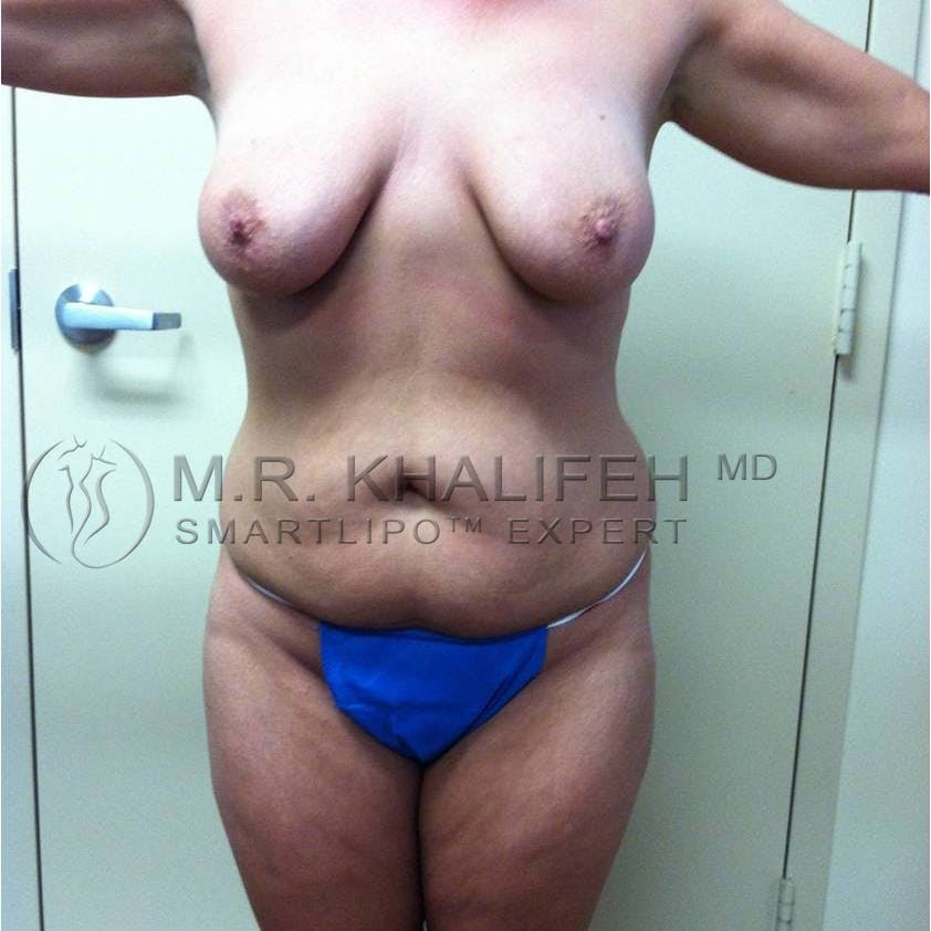 Abdominal Liposuction Gallery - Patient 3717843 - Image 5